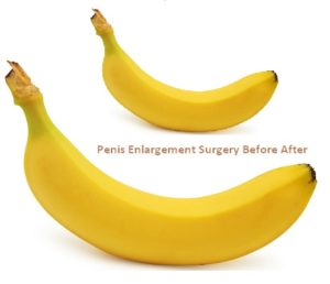 penis-enlargement-surgery-photo